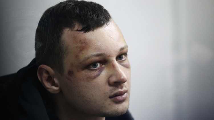 Краснов во время задержания был сильно избит. СБУ говорит, что он оказал сопротивление,